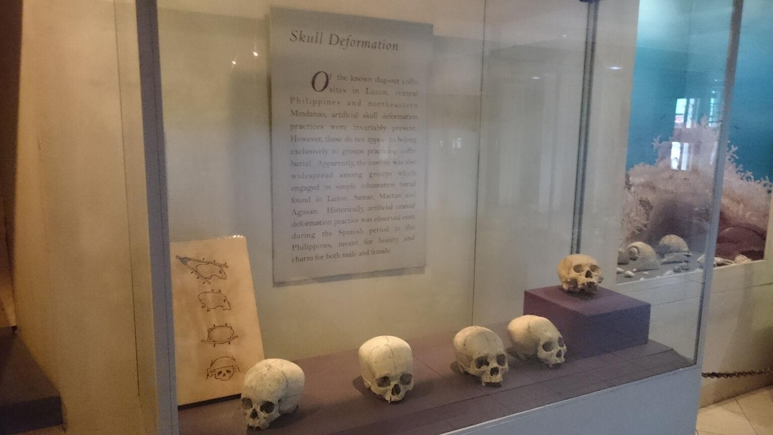 tagbilaran-bohol-national-museum-skull-deformation-exhibit